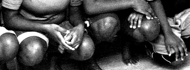 p2313-Black-girls-legs-3