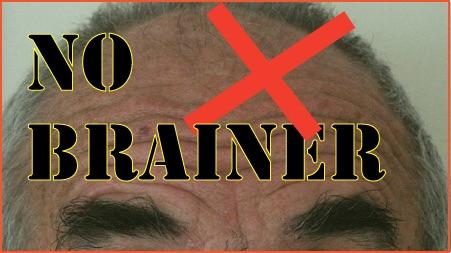 No-brainer-450